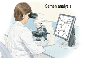 of analysis Cost sperm