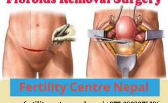Fibroid Removal Surgery Cost in Nepal